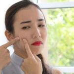 5 Jenis Jerawat Ini Bisa Disamarkan dengan Penggunaan Concealer, Begini Caranya