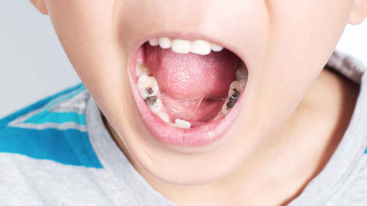Cara Ampuh Mengatasi Gigi Berlubang pada Anak